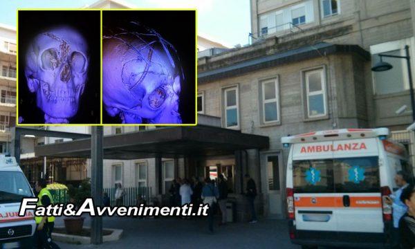 Sciacca. 11enne cade dalla bici: medici del Villa Sofia lo salvano ricostruendogli il cranio