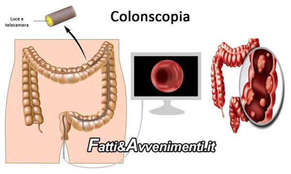 Salute & Benessere. Cancro al colon: individuare le lesioni precancerose con la colonscopia