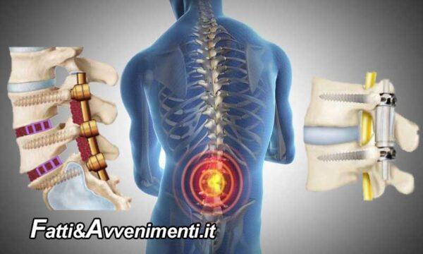 Salute & Benessere. Terapia della spondilolistesi lombare: farmaci, fisioterapia o chirurgia?